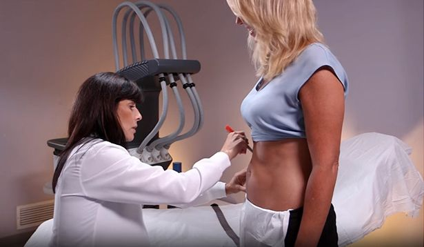 Watch Video: SculpSure Patient Treatment Experience