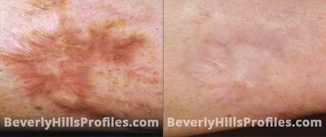 Acne Surgical Scars Before and After Photos - patient 4