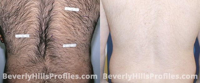 Unwanted Hair Before and After Photos: back view, male patient 1