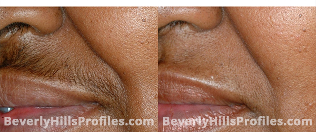 Unwanted Hair Before and After Photos: oblique view, male patient 3