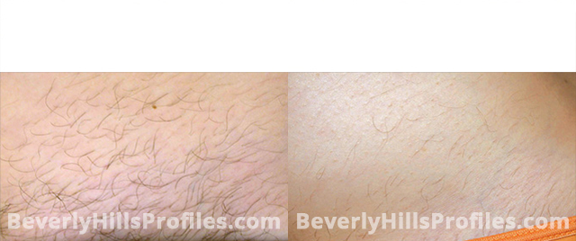 Unwanted Hair Before and After Photos: patient 4