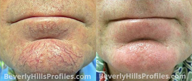 Facial Vessels and Pigments Before and After Photo Gallery - male, front view, patient 1