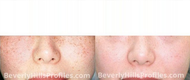 Facial Vessels and Pigments Before and After Photo Gallery - female, front view, patient 2
