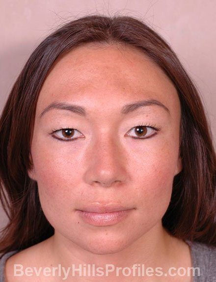 Ethnic Rhinoplasty After Treatment Photo - female, front view, patient 4