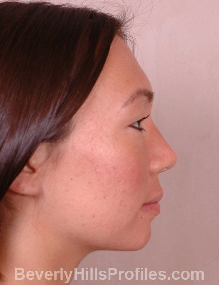Ethnic Rhinoplasty After Treatment Photo - female, right side view, patient 4