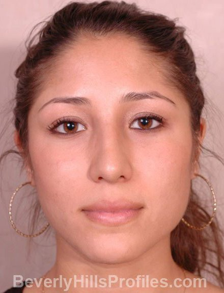 Ethnic Rhinoplasty After Treatment Photo - female, front view, patient 3