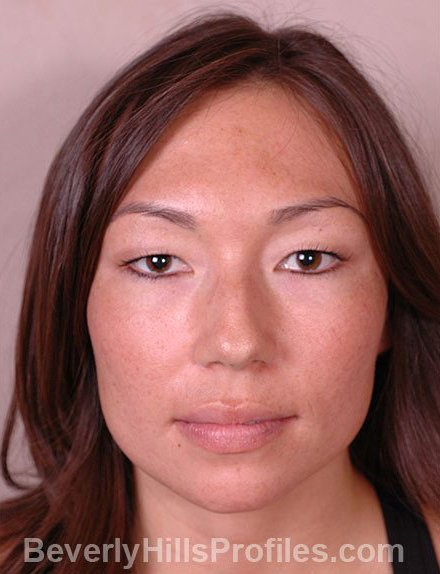 Ethnic Rhinoplasty Before Treatment Photo - female, front view, patient 4