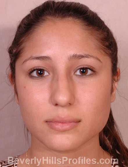 Ethnic Rhinoplasty Before Treatment Photo - female, front view, patient 3