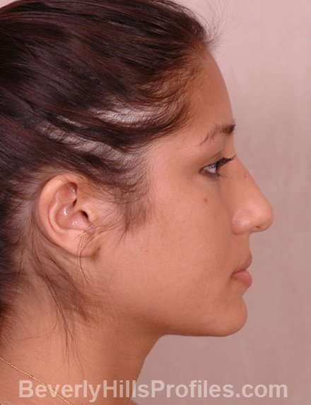 Ethnic Rhinoplasty Before Treatment Photo - female, right side view, patient 3