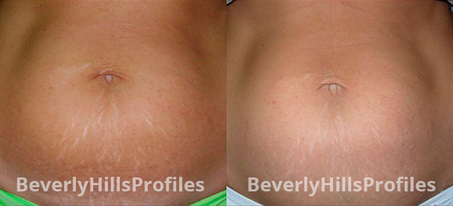 Stretch Marks Before and After Photos - female patient 1