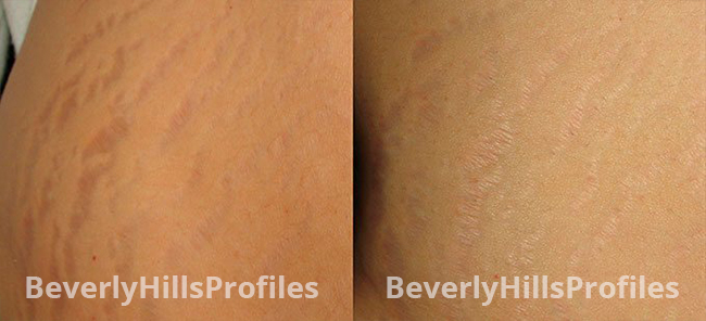 Stretch Marks Before and After Photos - female patient 2