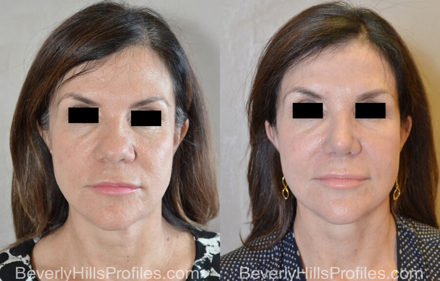 Facelift Before and After Photo Gallery - female, front view, patient 12