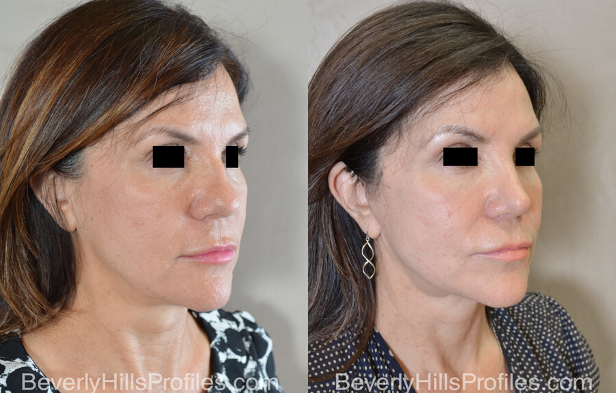 Facelift Before and After - female, right oblique view