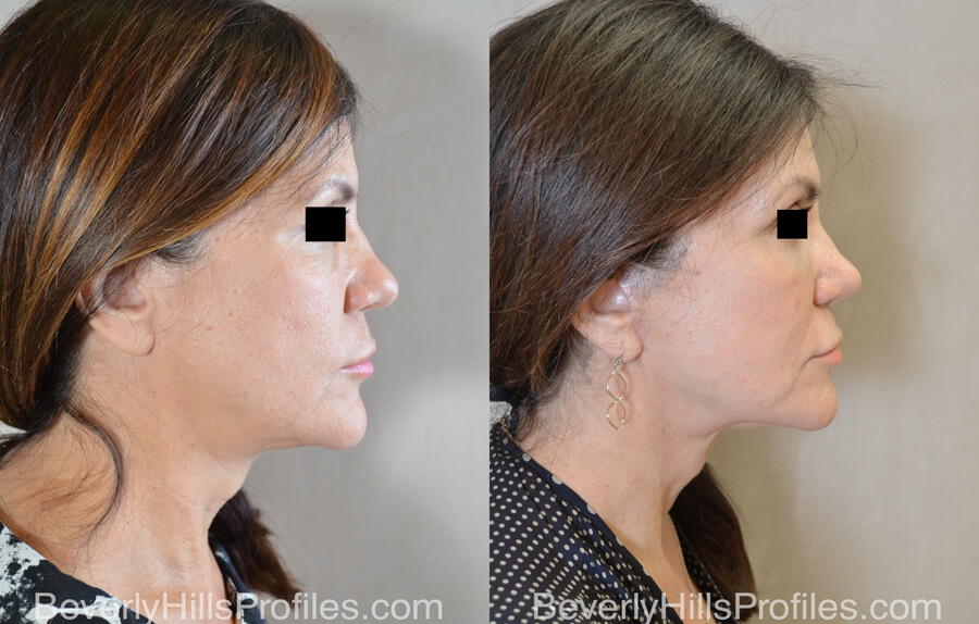 Facelift Before and After - female, side view