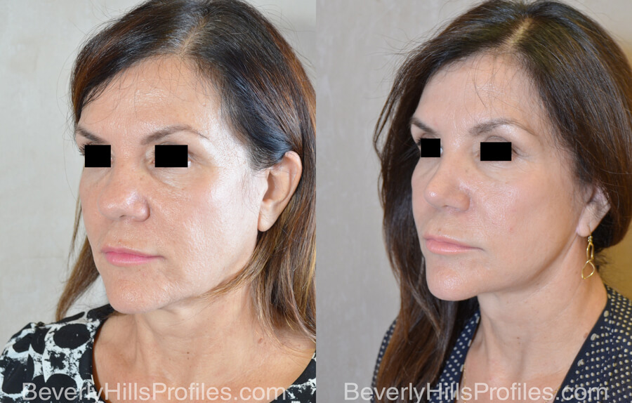 Facelift Before and After - female, oblique view