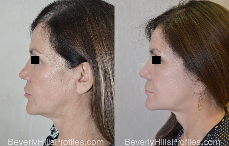 Facelift Before and After - female, right side view