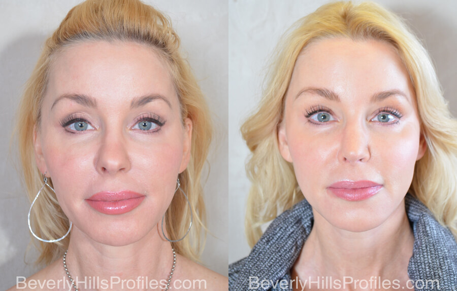 Facial Fat Transfer Before and After Photo Gallery - female, front view,patient 15