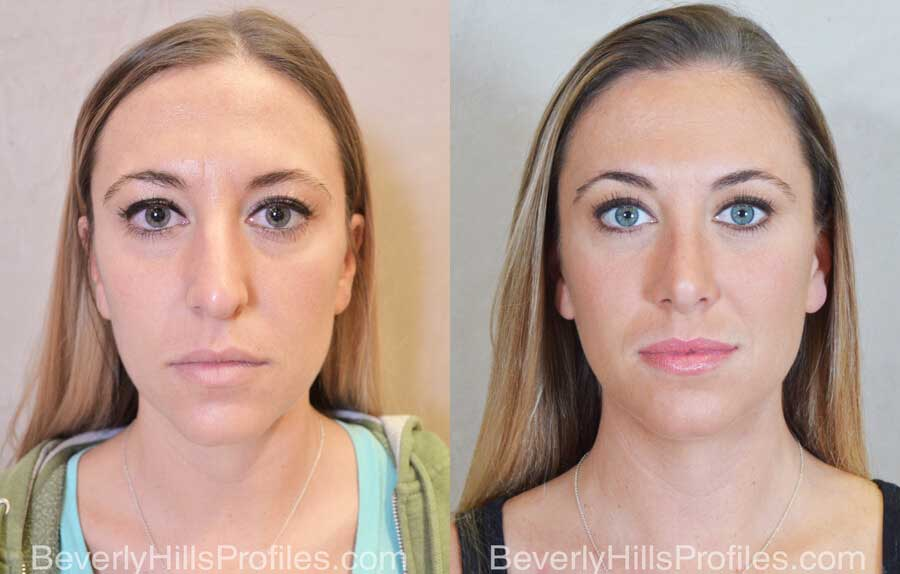Rhinoplasty Before and After - female, front view