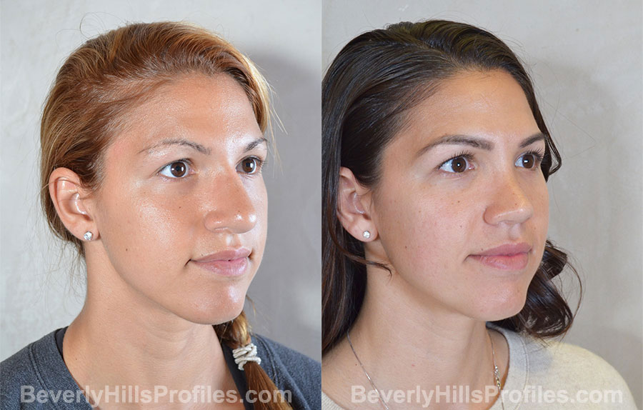 Revision Rhinoplasty Before and After Photo - female, right oblique view
