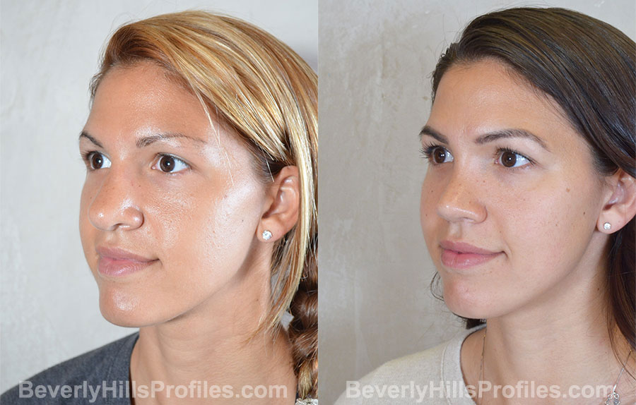 Revision Rhinoplasty Before and After Photo - female, oblique view
