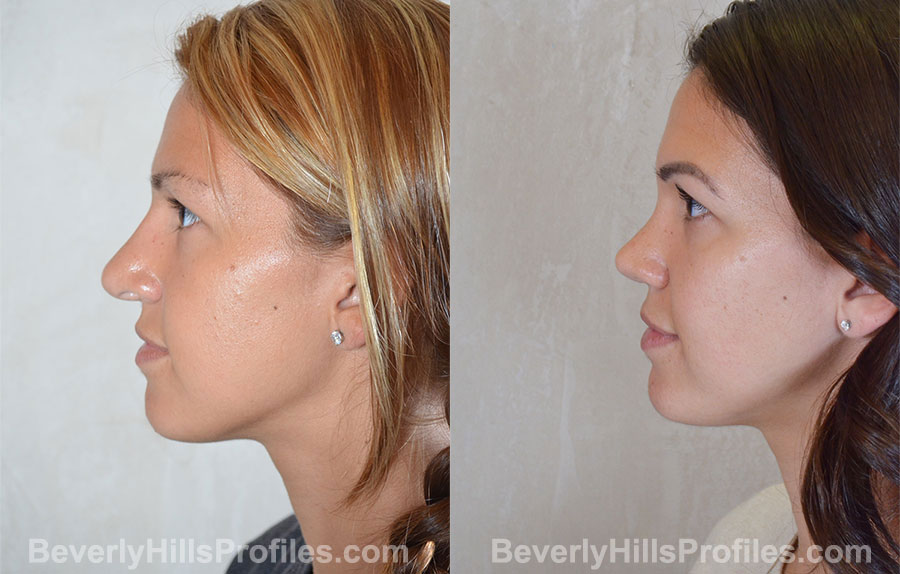 Revision Rhinoplasty Before and After Photo - female, side view