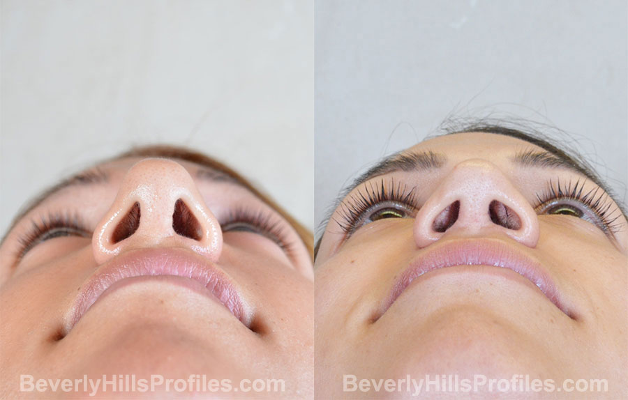 Revision Rhinoplasty Before and After Photo Gallery - female, bottom view