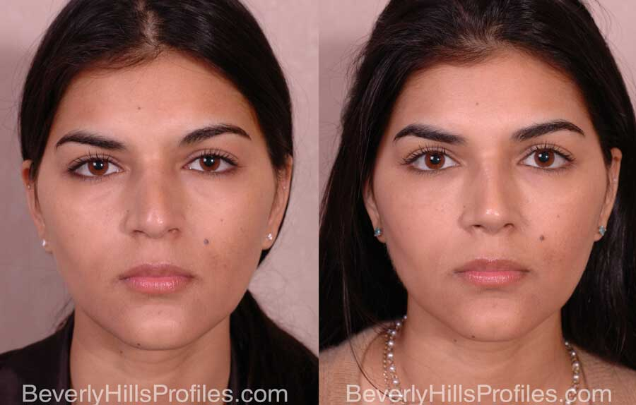 Nose Job Before and After - female, front view