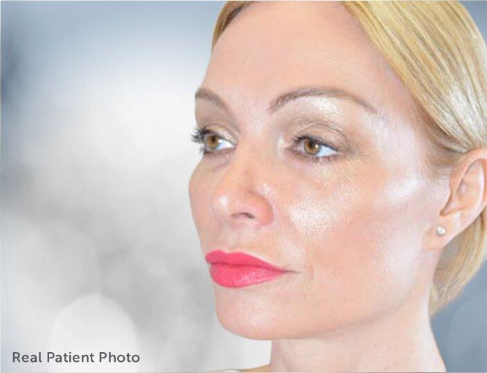 Eye Rejuvenation. Real Patient Photo - female patient