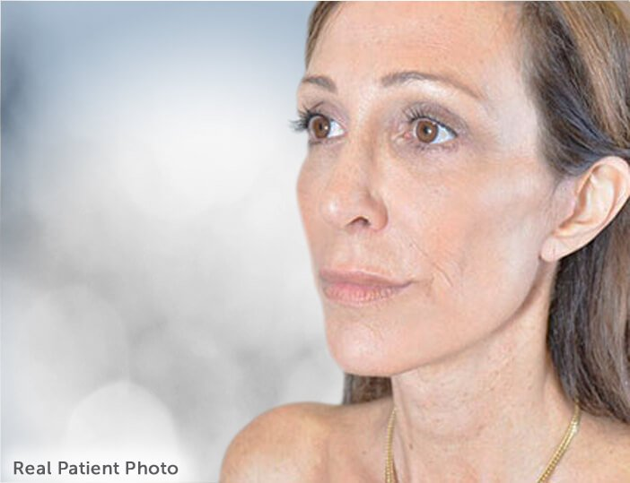 The Hybrid Facelift. Real Patient Photo - female patient