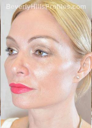 BROWLIFT. After Treatment Photo - female, oblique view, patient 2