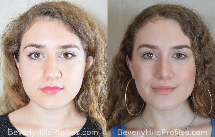 Rhinoplasty Before and After Photos: front view, female patient 1