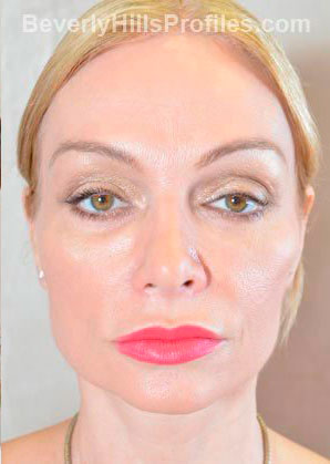 Female face - after Fat Grafting treatment, front view, patient 1
