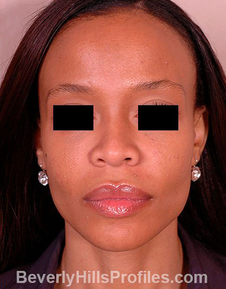 AFRICAN AMERICAN RHINOPLASTY - After Treatment Photo: female front view, patient 1