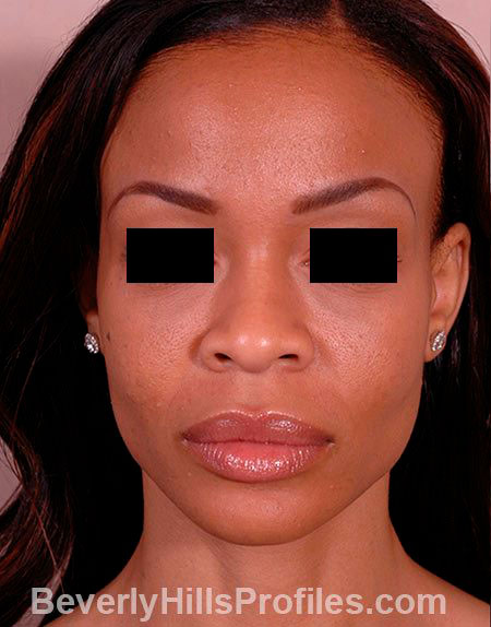 AFRICAN AMERICAN RHINOPLASTY - Before Treatment Photo: female front view, patient 1