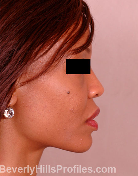 AFRICAN AMERICAN RHINOPLASTY - After Treatment Photo: female right side view, patient 1