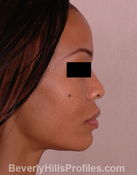 AFRICAN AMERICAN RHINOPLASTY - Before Treatment Photo: female right side view, patient 1