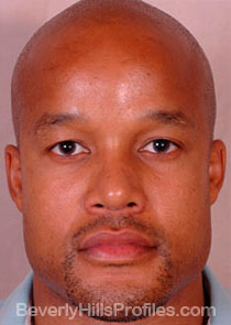 AFRICAN AMERICAN RHINOPLASTY: After Treatment Photo: male front view, patient 2