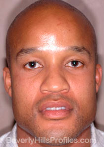 AFRICAN AMERICAN RHINOPLASTY:  Before Treatment Photo: male front view, patient 2