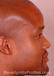 AFRICAN AMERICAN RHINOPLASTY: After Treatment Photo: male right side view, patient 2