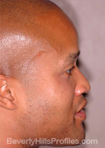 AFRICAN AMERICAN RHINOPLASTY: Before Treatment Photo: male right side view, patient 2