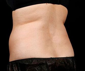 Female back - before SculpSure treatment, patient 1
