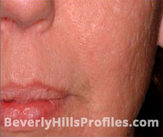https://www.beverlyhillsprofiles.com/wp-content/uploads/2018/10/acne-scars-set-1-1-a.jpg