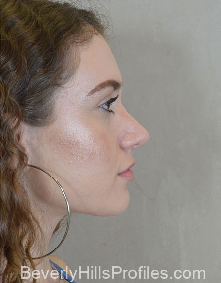 Ethnic Rhinoplasty After Treatment Photo - female, right side view, patient 1
