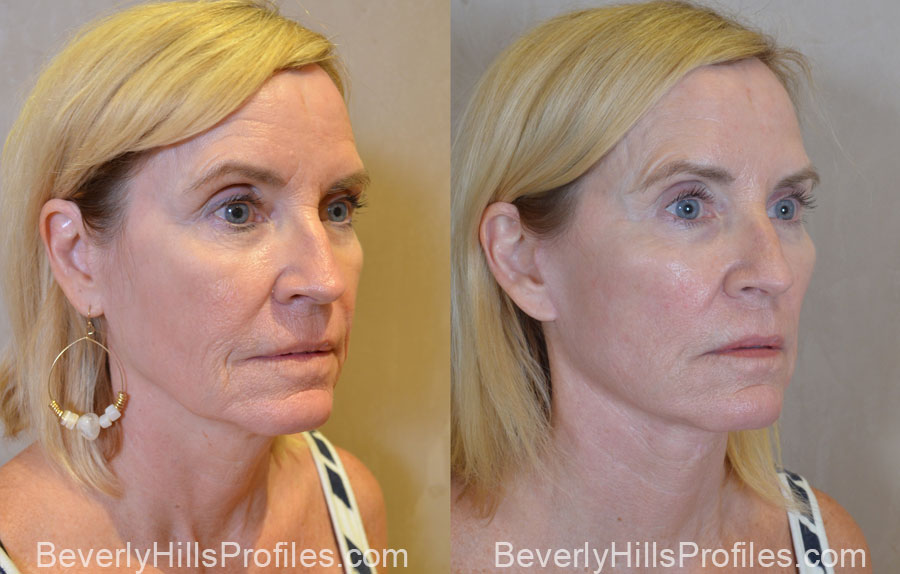 Facelift Before and After - old female, oblique view