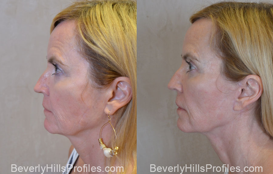 Facelift Before and After - old female, side view