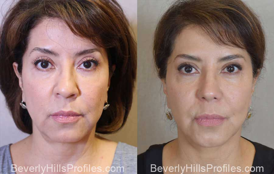 Facelift Before and After Photo Gallery - female, front view, patient 14