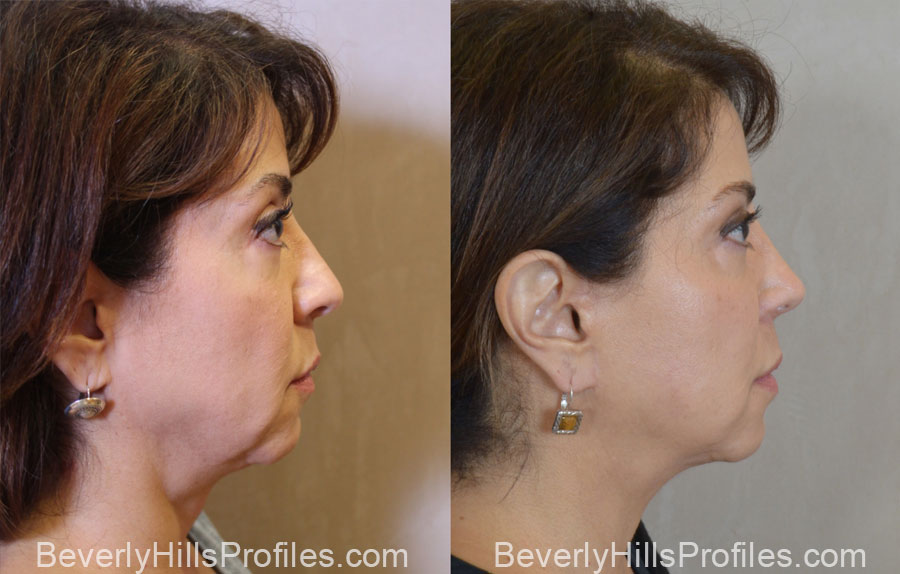 Facelift Before After - female, right side view