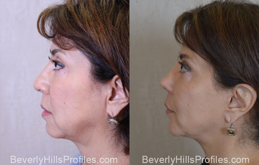 Facelift Before After - female, side view