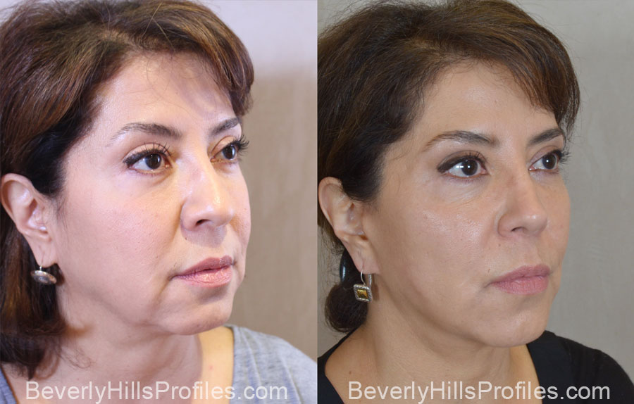 Facelift Before After - female, right oblique view