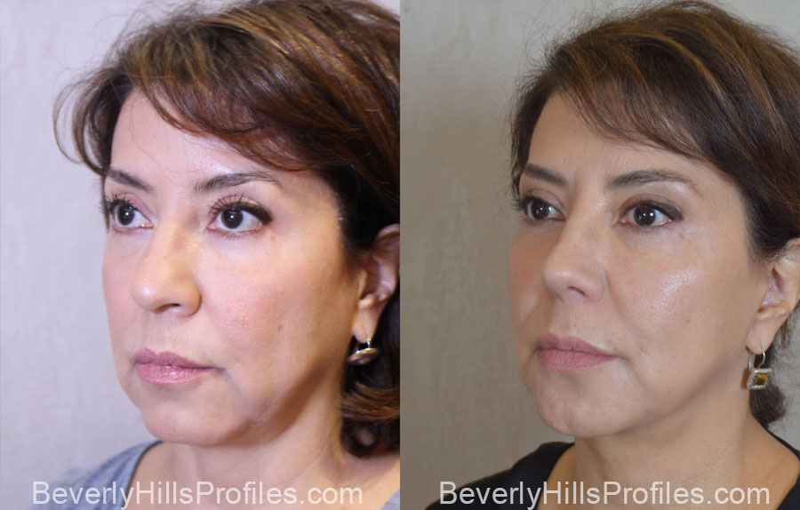 Facelift Before After - female, oblique view